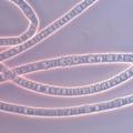 Kabelbacteriën: levende stroomkabels met ongekende geleidbaarheid