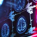 Stopping Alzheimer's before it starts
